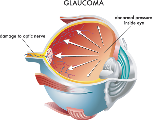 Carlsbad Glaucoma Treatment